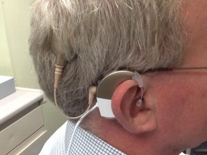 My Advanced Bionics cochlear implant device (note thick head)